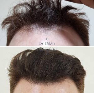 hair transplant surgery fue