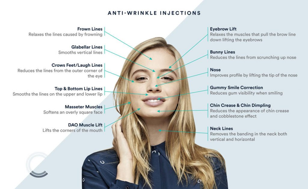 anti wrinkle injection points on the face