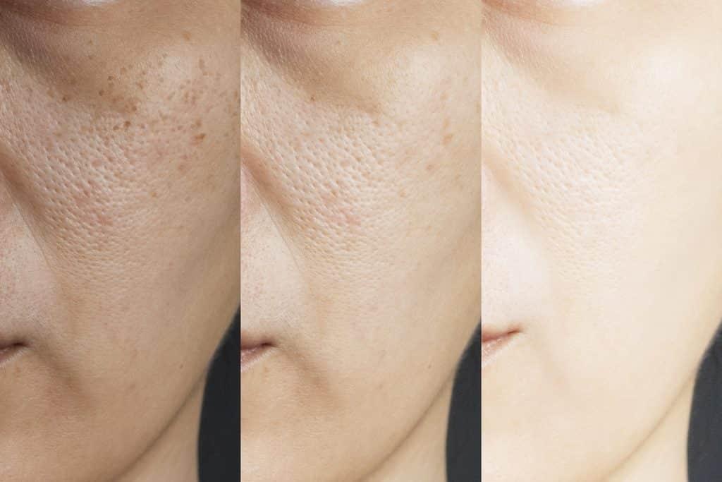 enlarged pores microneedling ipl rf dermatologist