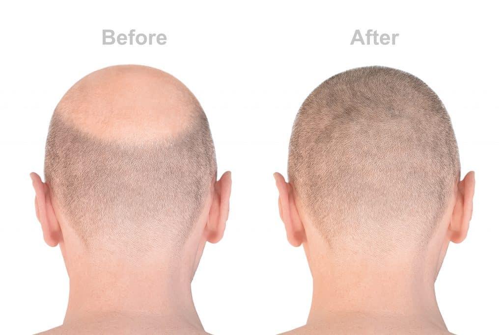 hair loss surgery fue prp microneedling omniya clinic