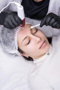 micro needling available at omniya clinic in london with dermapen rejuvenating the skin
